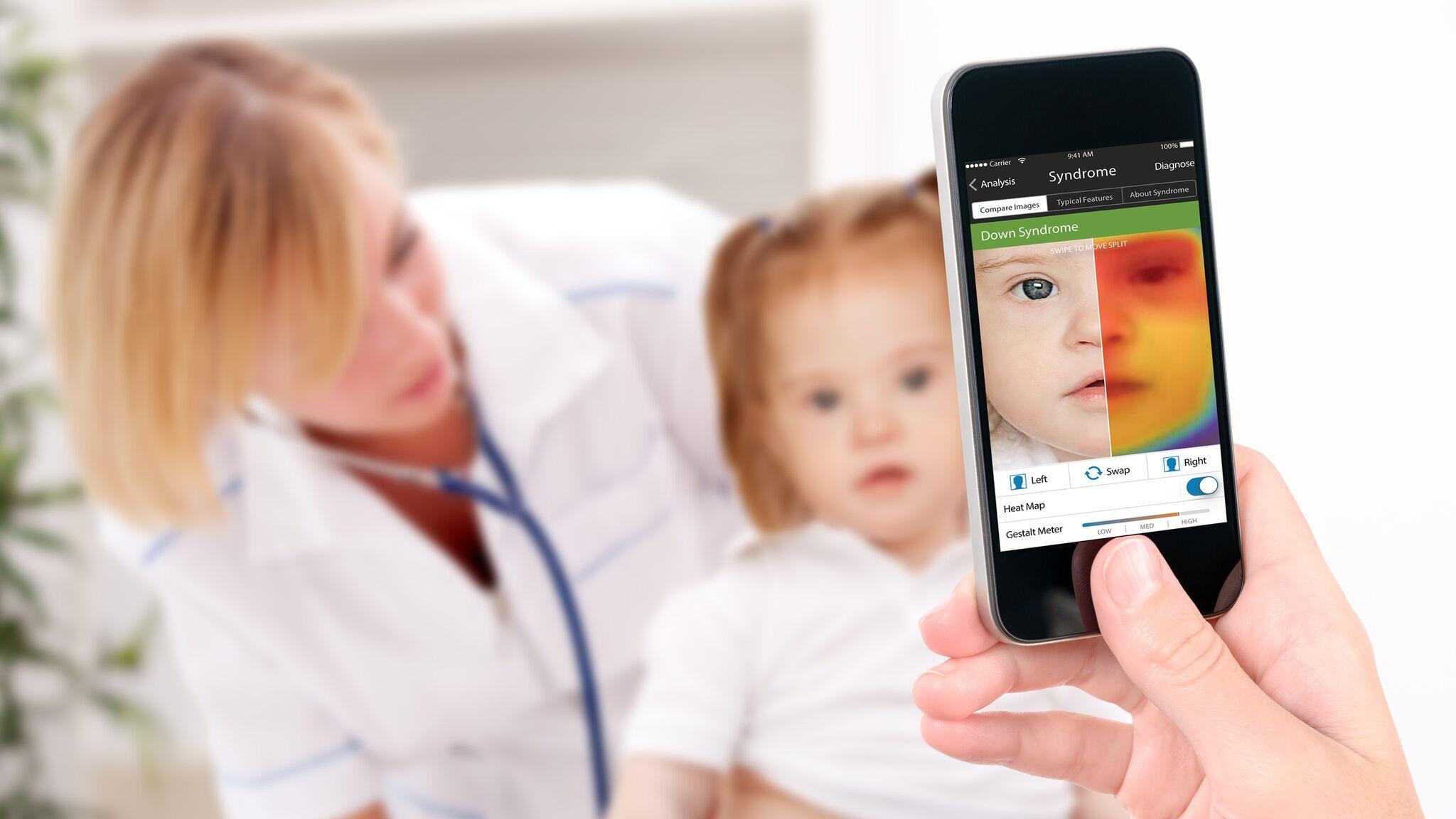 Face2Gene: l'app che riconosce le malattie genetiche rare da una foto